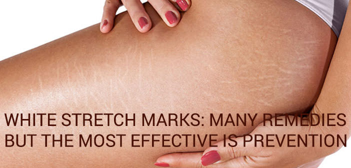 The Baby Expert: Stretch Marks